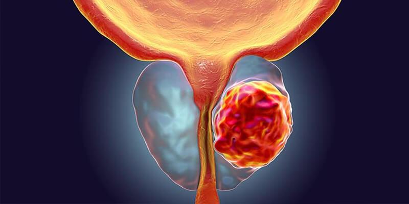 Chequeo anual y vida sana siguen siendo clave para prevenir el cáncer de próstata