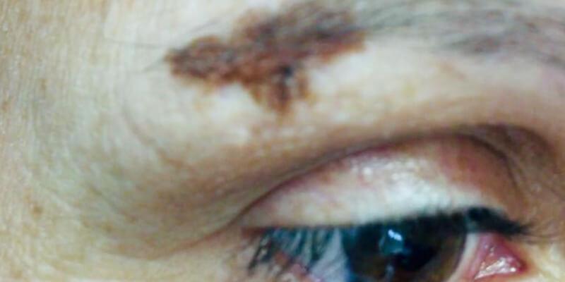 Cómo protegernos del cáncer de piel