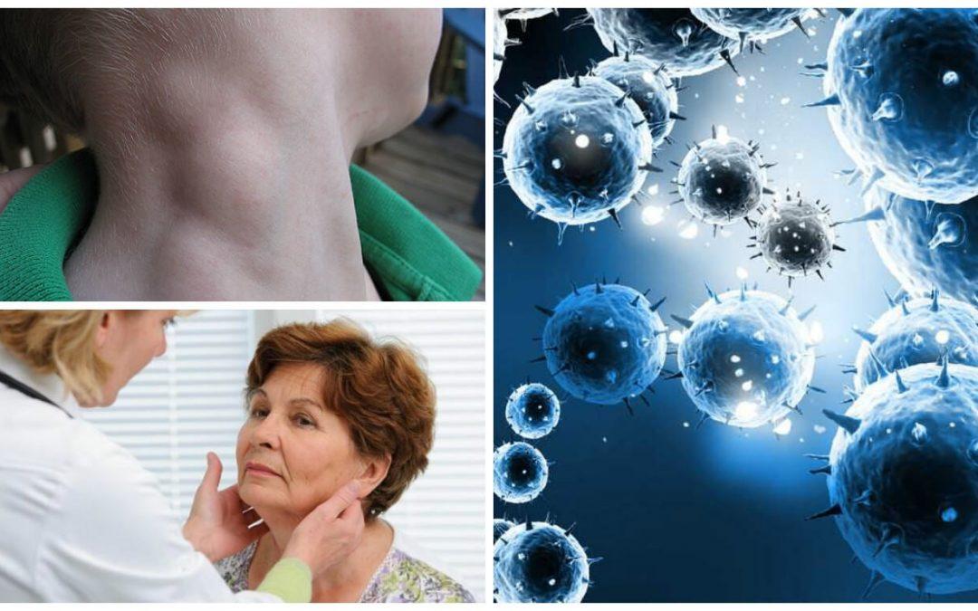 Conoce los principales síntomas de un linfoma
